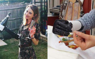'Super teacher' receives advanced bionic 'hero' arm